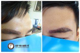 Tại sao nên sử dụng phương pháp cấy ghép lông mày cho nam giới?