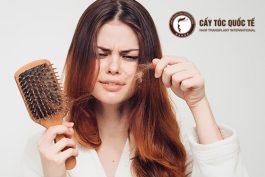 """Chi phí trị rụng tóc có đắt không? Bị rụng tóc nên chi tiền như thế nào cho """"thông minh""""?"""