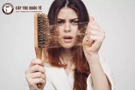 Hỏi – Đáp: Rụng tóc phải làm sao? Chia Sẻ Từ Chuyên Gia Chăm Sóc Tóc