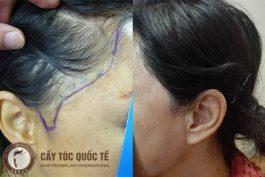 Cấy tóc mai – lấy lại vẻ đẹp cho khuôn mặt