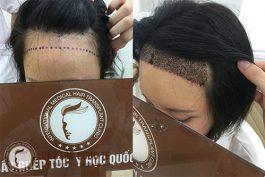 Cấy tóc tự thân thay đổi diện mạo