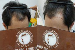 Cách trị hói đầu ở nam giới cực kỳ hiệu quả không phải ai cũng biết