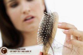 Bạn đã biết tóc rụng nhiều là bệnh gì chưa?